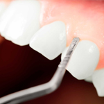 periodoncia_dental